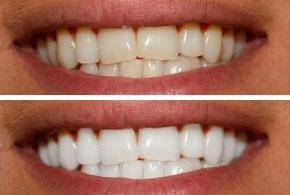 tandblekning med skena